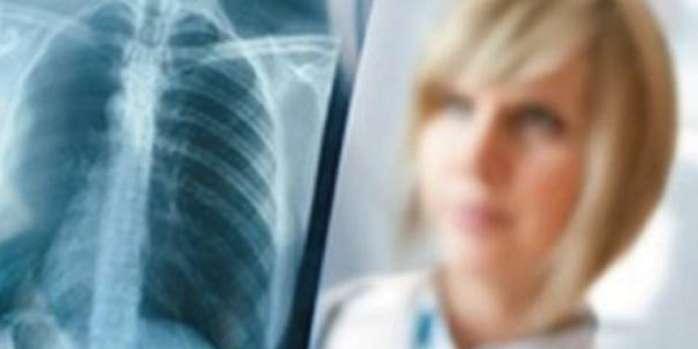 Akciğer Kanserinin Cerrahi Yöntemlerle Tedavisi